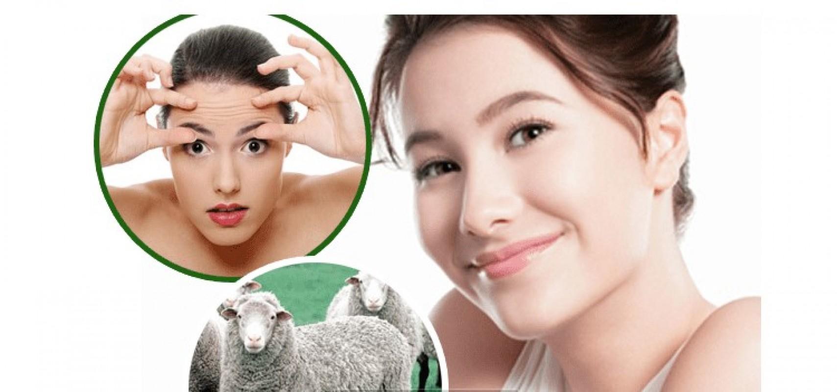 Viên Uống Nhau Thai Cừu Có Tác Dụng Gì? Bị U Xơ Có Nên Uống Nhau Thai Cừu Không?