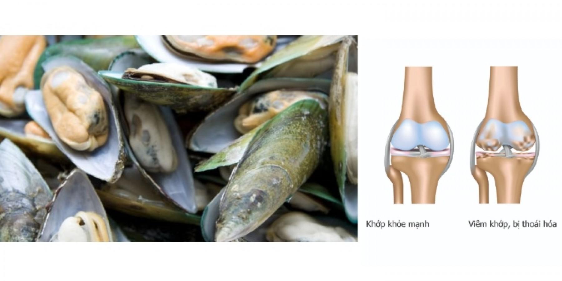 Viên Uống Hỗ Trợ Xương Khớp Careline NZ Green Mussel