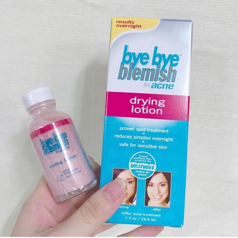 Lotion Cải Thiện Mụn Bye Bye Blemish For Acne Drying